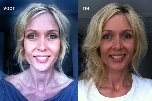 Beauty Review: Alpha Beta Glow Pad van Dr. Dennis Gross - voor en na